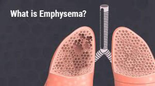 آمیفزم (پرهوایی ریه) و روش های درمانی برای تنفس آسان